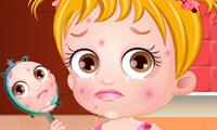 Baby Hazel: Hautprobleme