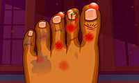 Operazione piedi mostruosi